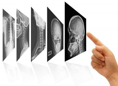 Benefits of Implementing EHR for Radiologists